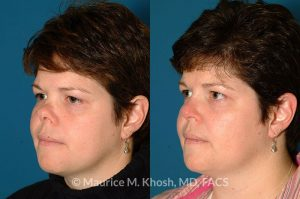 Photo of a patient before and after a procedure. Saddle Nose