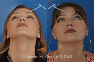 Photo of a patient before and after a procedure. Saddle nose - 27 year old with saddle nose collapse due to an autoimmune condition. She was bothered by the unnatural sag of the bridge of the nose, loss of nasal tip definition, and nasal obstruction. Her own rib cartilage was used during saddle nose rhinoplasty, to reconstruct the nose and restore breathing. The last two images show the computer simulation of surgical outcome (middle picture), as well as the final outcome (the picture on the right side). Patient is delighted with her results.